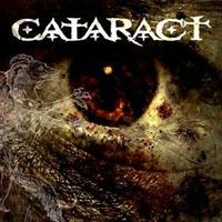 Cataract - st